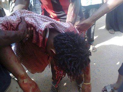 victim in sudan